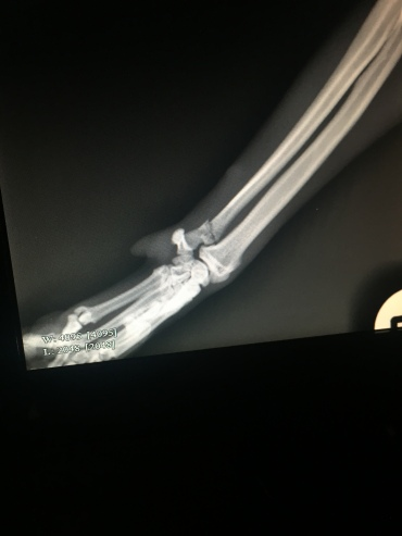 His fractured ulna - poor biscuit...